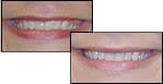 Immediate Teeth Whitening Results with Hamilton OH Dentist Dr. Dolgov