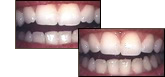 Enamel Shaping with Dr. Fattahi