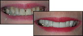 Veneers in Hamilton OH Dentist